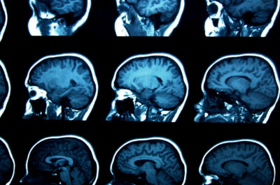 Does the human brain need carbohydrates to function optimally?